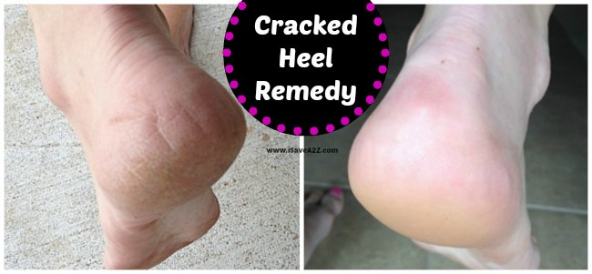 Cracked Heel Remedy
