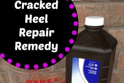 Cracked Heel Remedy For Super Soft Feet Isavea2z Com