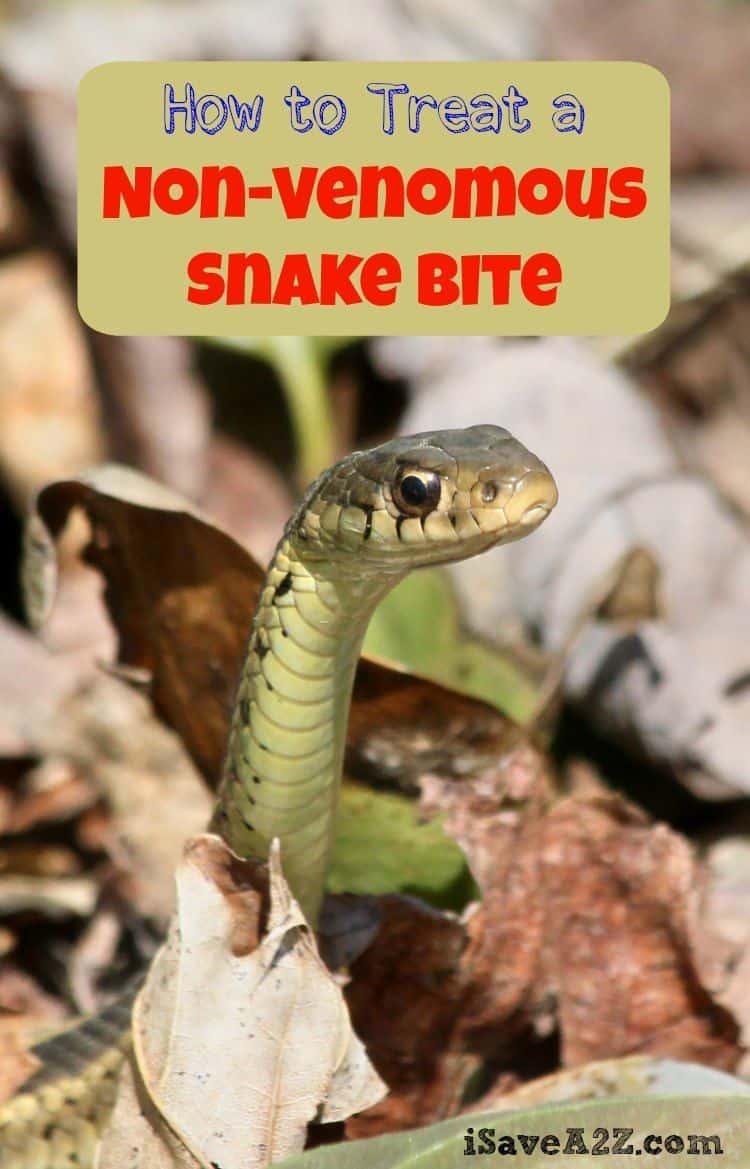 Dangerous snake bites